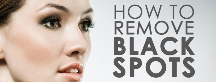 Dark Spots Removal Home Remedies | 5 Natural Ways To Remove Dark Spots