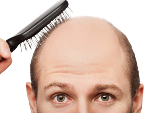 How To Prevent Hair Fall, Natural Remedies To Stop Hair Fall