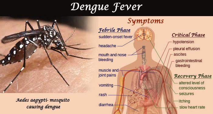 Dengue Fever Symptoms, Treatment & Prevention